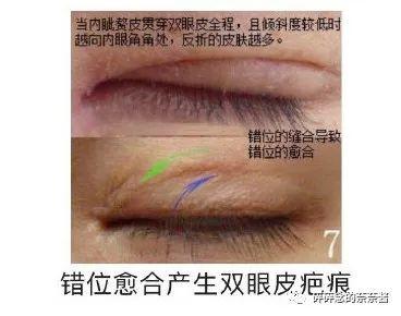 https://img.miyanlife.com/mnt/timg/210224/1122091624-8.jpg 双眼皮疤痕篇——全切双眼皮术后疤痕问题详解 知识库 第9张