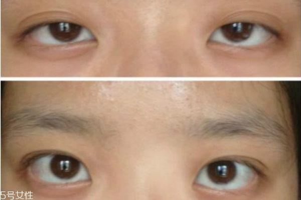 眼睑下垂能治疗吗 眼睑下垂治疗方法 眼睑下垂能治疗吗 眼睑下垂治疗方法 知识库 第1张