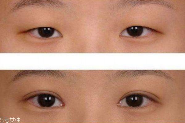 眼睑下垂能治疗吗 眼睑下垂治疗方法 眼睑下垂能治疗吗 眼睑下垂治疗方法 知识库 第2张