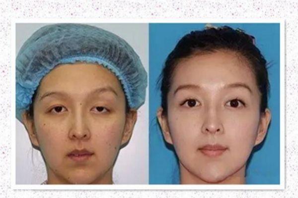 眼睑下垂能治疗吗 眼睑下垂治疗方法 眼睑下垂能治疗吗 眼睑下垂治疗方法 知识库 第3张
