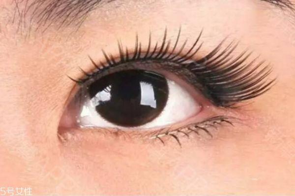 眼睑下至术是什么 眼睑下至术的手术原理 眼睑下至术是什么 眼睑下至术的手术原理 知识库 第3张
