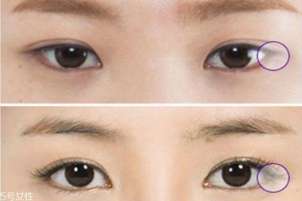 眼睑下至术是什么 眼睑下至术的手术原理 眼睑下至术是什么 眼睑下至术的手术原理 知识库 第4张