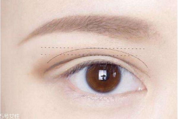 双眼皮手术要了解什么 双眼皮手术前禁忌 双眼皮手术要了解什么 双眼皮手术前禁忌 知识库 第3张