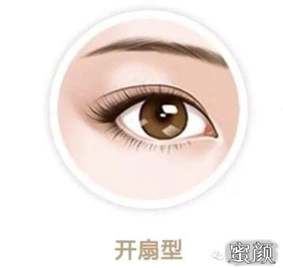 https://img.miyanlife.com/mnt/timg/210224/1425015C2-7.jpg 做个双眼皮眼型不可以自己选? 知识库 第8张