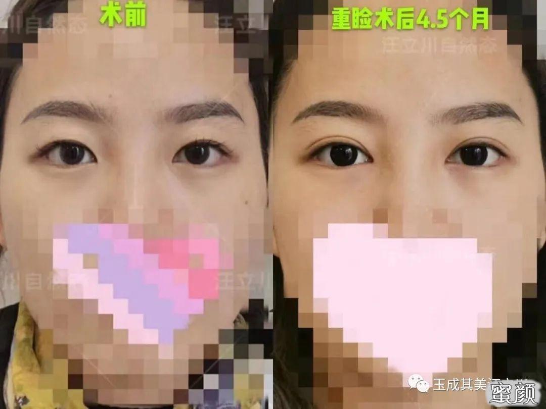 https://img.miyanlife.com/mnt/timg/210224/142504I26-11.jpg 做个双眼皮眼型不可以自己选? 知识库 第12张