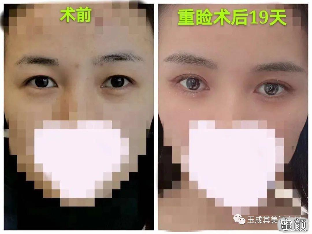 https://img.miyanlife.com/mnt/timg/210224/142504E29-12.jpg 做个双眼皮眼型不可以自己选? 知识库 第13张