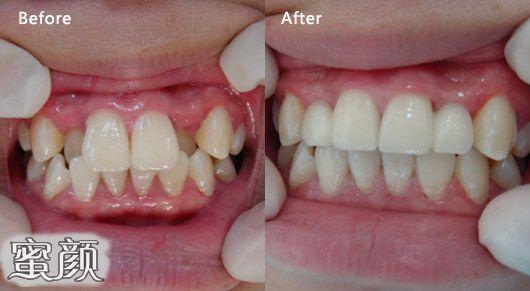 https://img.miyanlife.com/mnt/Editor/2021-02-23/60346912edb1e.jpg 整牙=整容?你的牙齿有这些情况就该整整了 知识库 第1张