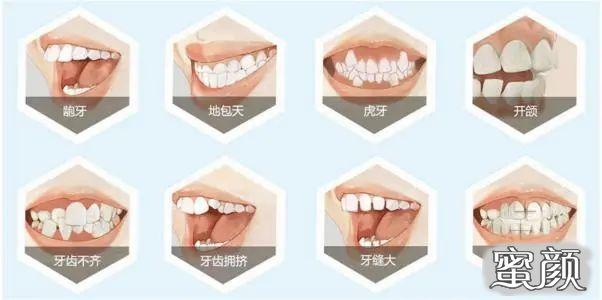 https://img.miyanlife.com/mnt/timg/210223/10331JS5-3.jpg 整牙=整容?你的牙齿有这些情况就该整整了 知识库 第4张