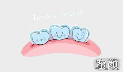 https://img.miyanlife.com/mnt/timg/210223/10331JX2-5.jpg 整牙=整容?你的牙齿有这些情况就该整整了 知识库 第6张