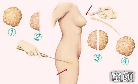 https://img.miyanlife.com/mnt/timg/210224/1PK94929-9.jpg 假体隆胸和自体脂肪填充隆胸该怎么选? 知识库 第10张