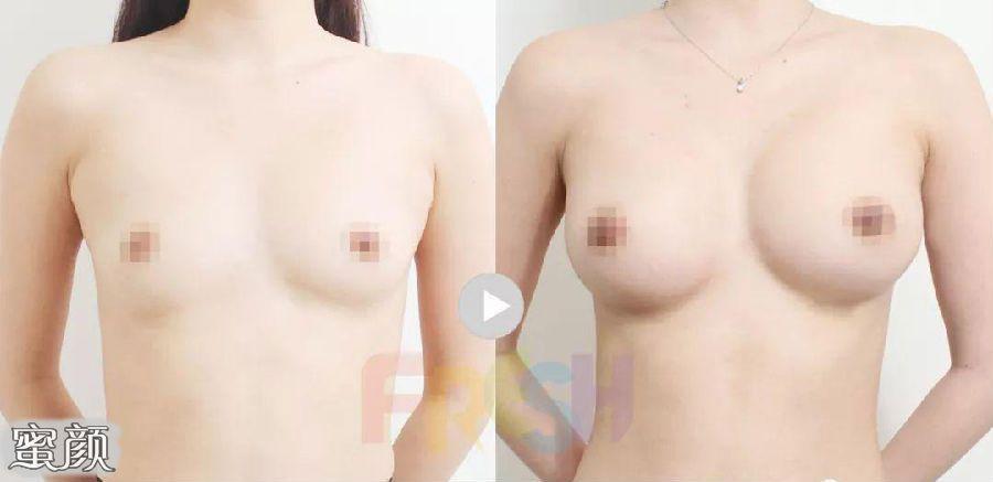 https://img.miyanlife.com/mnt/Editor/2021-02-24/60362b3781561.jpg 假体隆胸和自体脂肪填充隆胸该怎么选? 知识库 第14张
