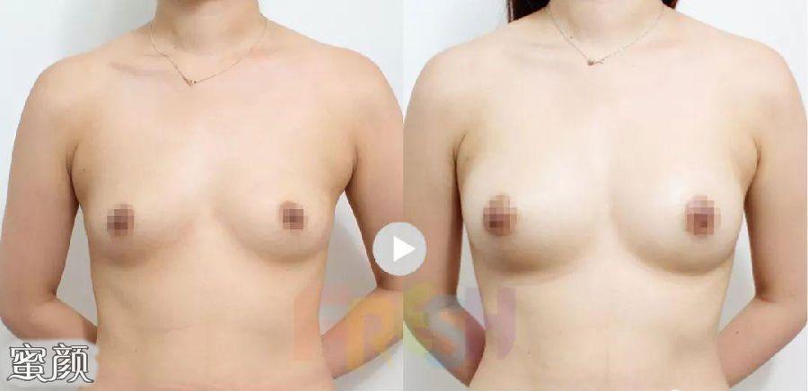 https://img.miyanlife.com/mnt/Editor/2021-02-24/60362b410d98a.jpg 假体隆胸和自体脂肪填充隆胸该怎么选? 知识库 第16张