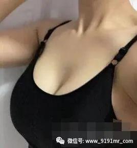 https://img.miyanlife.com/mnt/timg/210224/19332J005-1.jpg 假体隆胸案例 不用再死劲的穿厚厚的胸衣了 知识库 第2张