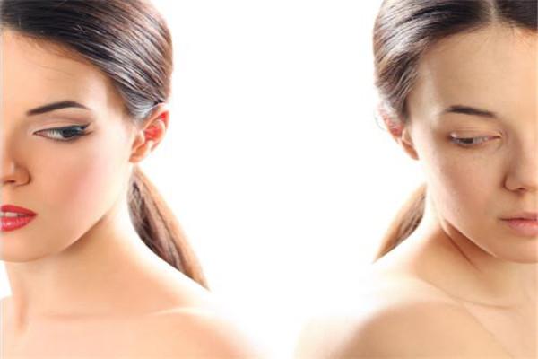 美杜莎双眼皮多久恢复 美杜莎双眼皮是什么 美杜莎双眼皮多久恢复 美杜莎双眼皮是什么 知识库 第1张