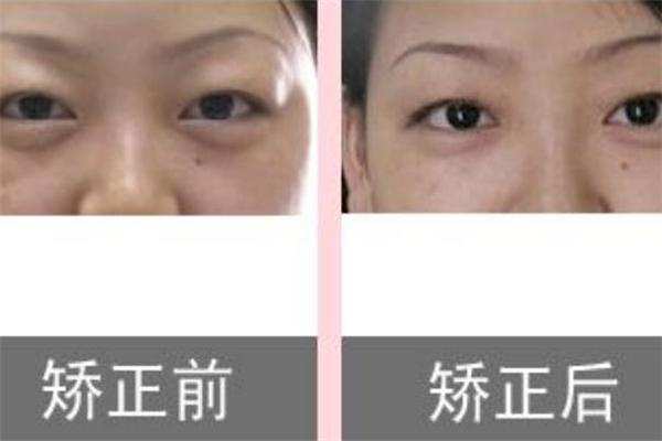 眼皮抽脂效果好吗 眼皮抽脂前后效果对比 眼皮抽脂效果好吗 眼皮抽脂前后效果对比 知识库 第2张