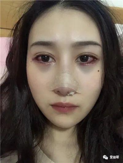 https://img.miyanlife.com/mnt/timg/210223/1A6201V4-1.jpg 北京硅胶假体隆鼻术后恢复效果分享 知识库 第2张