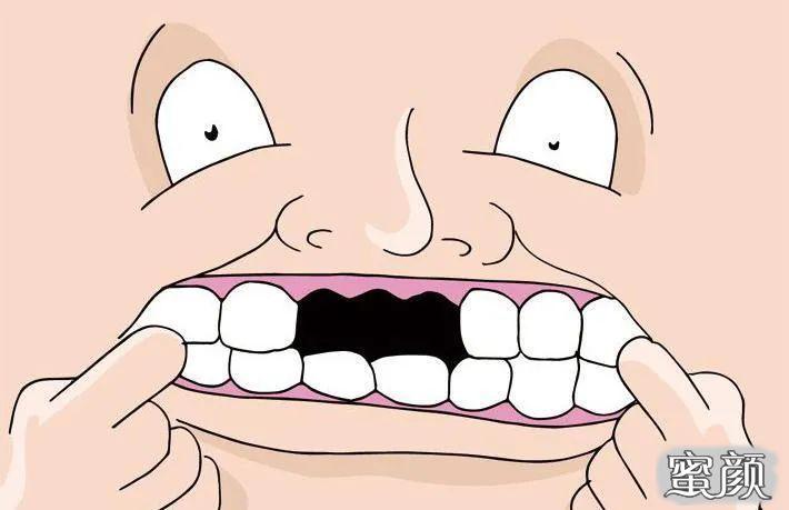 https://img.miyanlife.com/mnt/timg/210223/1K0394a2-3.jpg 种植牙:春节过后,你的牙还好吗? 知识库 第4张