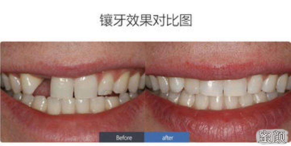 https://img.miyanlife.com/mnt/Editor/2021-02-23/6034d41a8f0ae.jpg 种植牙:春节过后,你的牙还好吗? 知识库 第6张