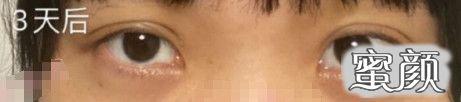 https://img.miyanlife.com/mnt/timg/210223/2024423U7-1.jpg 埋线双眼皮案例:埋线双眼皮对求美者的眼部都有哪些要求? 知识库 第2张