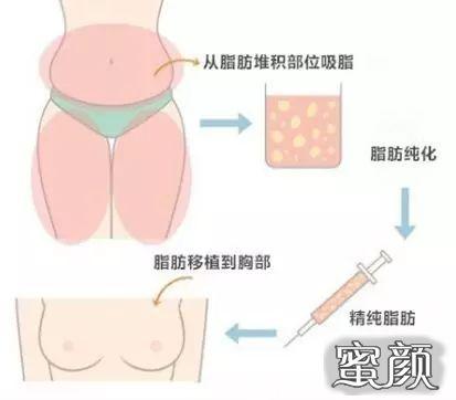 https://img.miyanlife.com/mnt/timg/210224/0Q1156054-3.jpg 假体隆胸、自体脂肪丰胸怎么选? 知识库 第4张