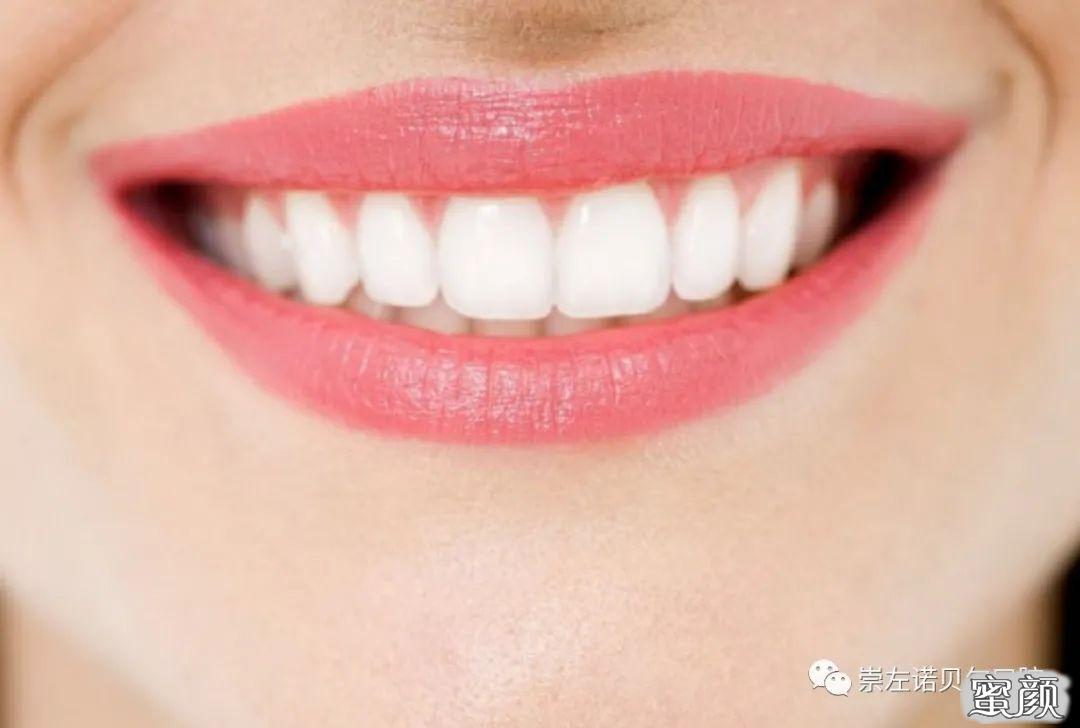 https://img.miyanlife.com/mnt/timg/210224/0R04545A-1.jpg 这三个时期是牙齿矫正的最佳年龄段,你知道吗? 知识库 第2张
