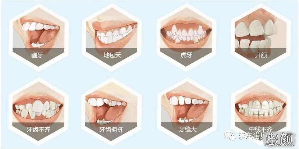 https://img.miyanlife.com/mnt/timg/210224/0R04BZ1-3.jpg 这三个时期是牙齿矫正的最佳年龄段,你知道吗? 知识库 第4张