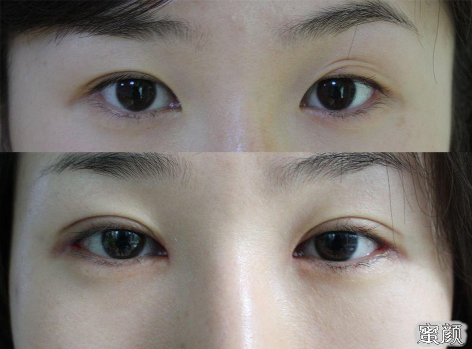 "https://img.miyanlife.com/mnt/Editor/2021-02-23/6034519c996e4.jpg 拯救天生""单眼皮""行动!说实话,单眼皮有必要弄成双眼皮吗? 知识库 第7张"