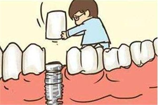 种植牙有什么风险 种植牙的风险大吗 种植牙有什么风险 种植牙的风险大吗 知识库 第1张