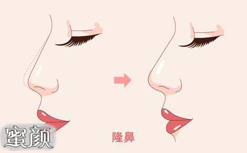 https://img.miyanlife.com/mnt/Editor/2021-02-21/6031d88b9bbd2.jpg 终于找到重庆的鼻综合+膨体隆鼻案例了 知识库 第2张