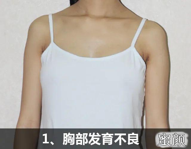 https://img.miyanlife.com/mnt/timg/210223/094Q431A-2.jpg 胸小、下垂、不对称……这些问题都能通过假体隆胸解决吗? 知识库 第3张