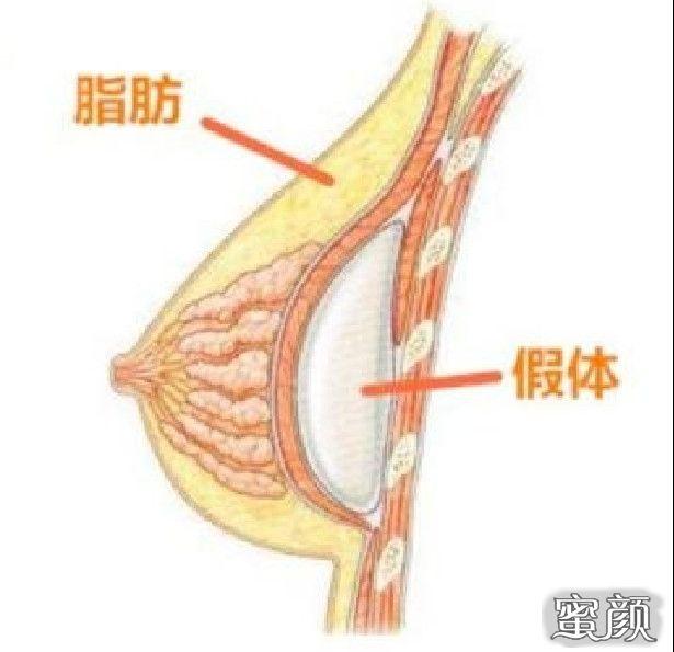 https://img.miyanlife.com/mnt/Editor/2021-02-23/60345e6cdbad7.jpg 胸小、下垂、不对称……这些问题都能通过假体隆胸解决吗? 知识库 第13张