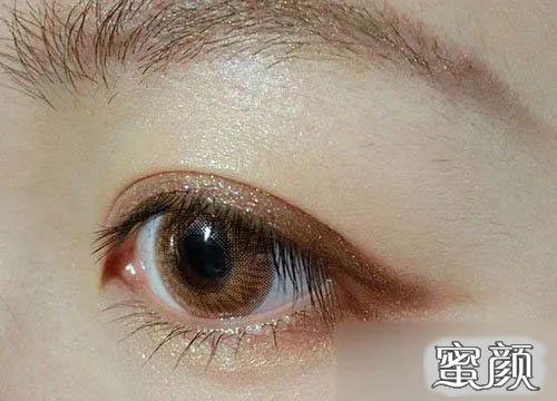 https://img.miyanlife.com/mnt/timg/210220/23444T591-8.jpg 变美攻略:全切、埋线还是韩式三点双眼皮,到底哪个好? 知识库 第10张