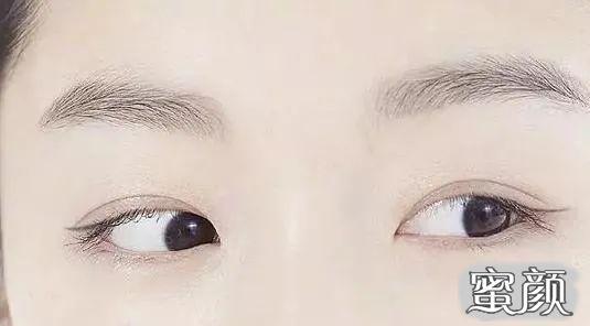https://img.miyanlife.com/mnt/timg/210220/2344492345-10.jpg 变美攻略:全切、埋线还是韩式三点双眼皮,到底哪个好? 知识库 第12张