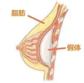 https://img.miyanlife.com/mnt/timg/210222/0012131609-6.jpg 哪一种隆胸方式更适合你?隆胸前必看! 知识库 第8张
