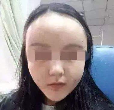 https://img.miyanlife.com/mnt/timg/210222/1215054134-2.jpg 面部填充后脸肿的像气球,这么可怕是啥原因造成的? 知识库 第3张