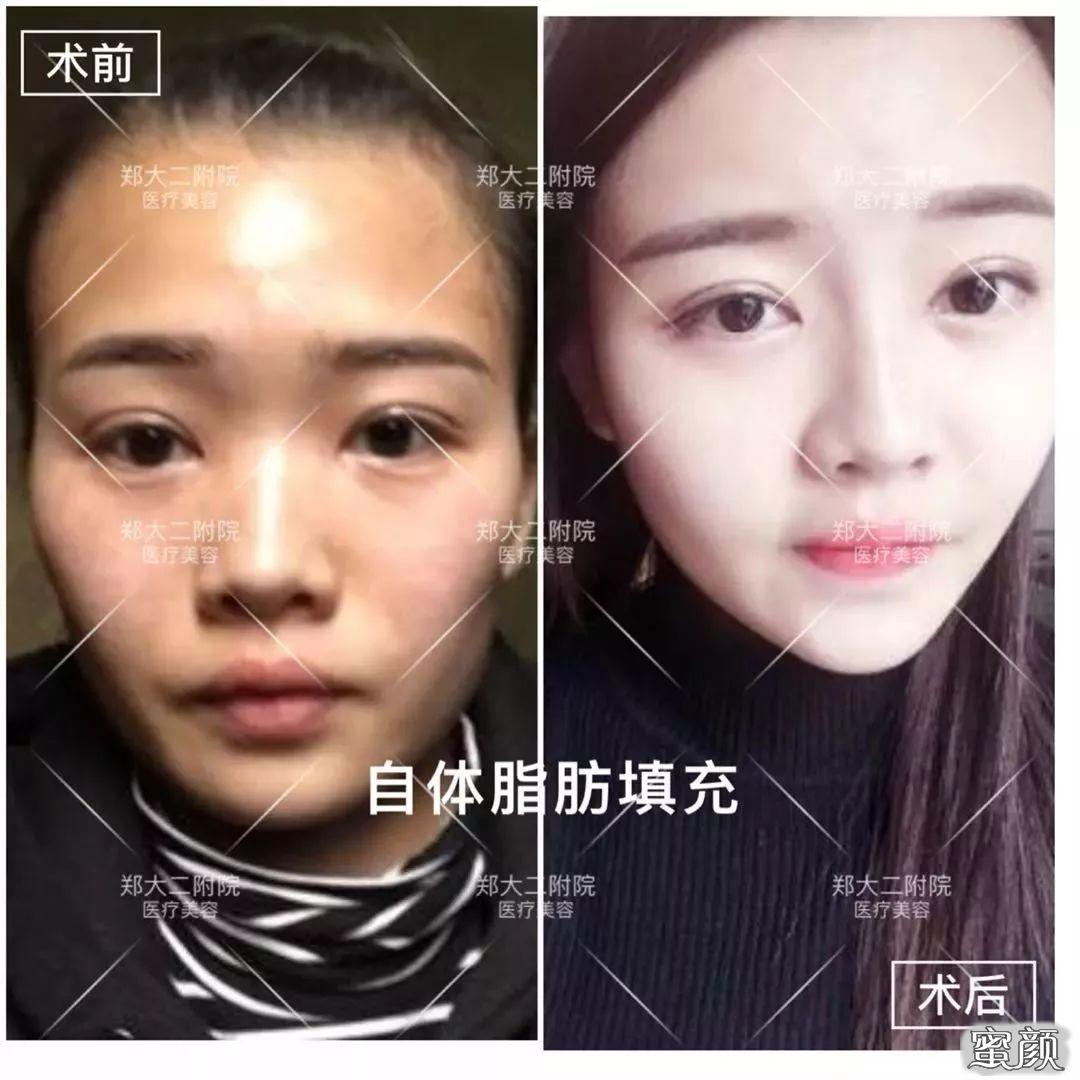 https://img.miyanlife.com/mnt/timg/210222/121511G34-7.jpg 面部填充后脸肿的像气球,这么可怕是啥原因造成的? 知识库 第8张