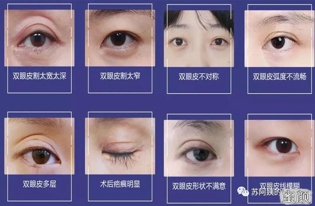 https://img.miyanlife.com/mnt/timg/210222/142G220A-0.jpg 双眼皮修复如何才能获得 满意双眼皮 知识库 第1张