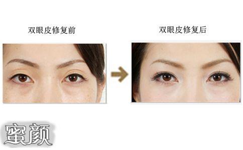 https://img.miyanlife.com/mnt/Editor/2021-02-22/60334e5f59152.jpg 双眼皮修复如何才能获得 满意双眼皮 知识库 第2张