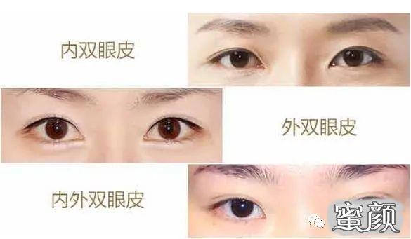 https://img.miyanlife.com/mnt/timg/210222/142G45X2-3.jpg 双眼皮修复如何才能获得 满意双眼皮 知识库 第4张