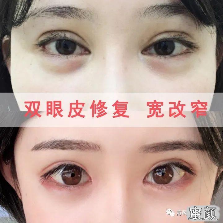 https://img.miyanlife.com/mnt/timg/210222/142G44231-5.jpg 双眼皮修复如何才能获得 满意双眼皮 知识库 第6张