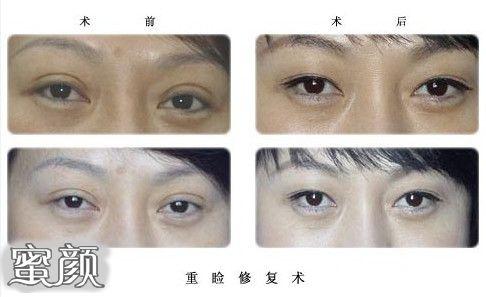 https://img.miyanlife.com/mnt/Editor/2021-02-22/60334e7d32b5d.jpg 双眼皮修复如何才能获得 满意双眼皮 知识库 第7张