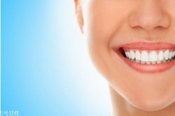 冷光美白后可以吃什么 冷光美白牙齿的注意事项 冷光美白后可以吃什么 冷光美白牙齿的注意事项 知识库 第2张