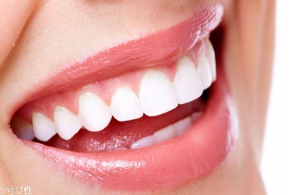 冷光美白后可以吃什么 冷光美白牙齿的注意事项 冷光美白后可以吃什么 冷光美白牙齿的注意事项 知识库 第3张