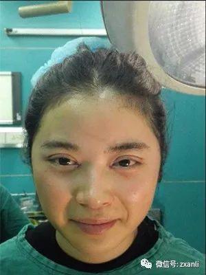 https://img.miyanlife.com/mnt/timg/210220/16421A306-1.jpg 决定去做一个切开双眼皮手术,的确是想拥有一个大的变化 知识库 第2张