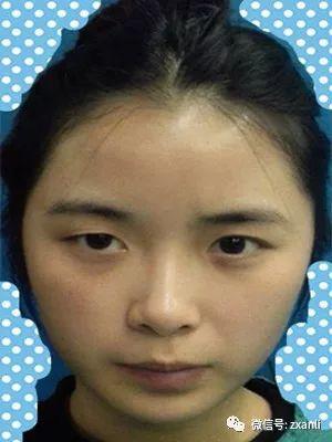 https://img.miyanlife.com/mnt/timg/210220/164214H63-0.jpg 决定去做一个切开双眼皮手术,的确是想拥有一个大的变化 知识库 第1张