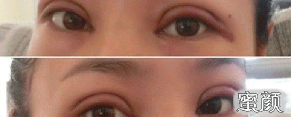 https://img.miyanlife.com/mnt/Editor/2021-02-22/6033cc1cb283f.jpg 决定去做一个切开双眼皮手术,的确是想拥有一个大的变化 知识库 第8张