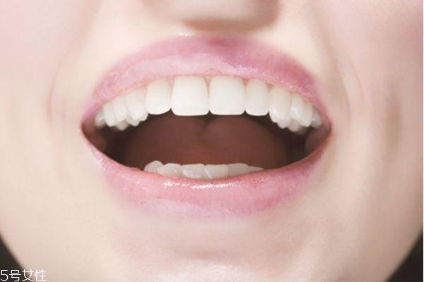 冷光美白牙齿痛吗 完全无痛感 冷光美白牙齿痛吗 完全无痛感 知识库 第1张