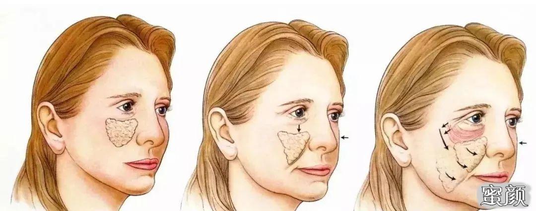 https://img.miyanlife.com/mnt/timg/210221/1016305320-5.jpg 九院韦敏科普丨同样是面部填充,为什么有人自然有人假面? 知识库 第6张
