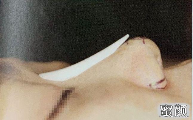 https://img.miyanlife.com/mnt/timg/210221/094UMZ0-2.jpg 隆鼻材料到底什么好?听听医生怎么说 知识库 第3张