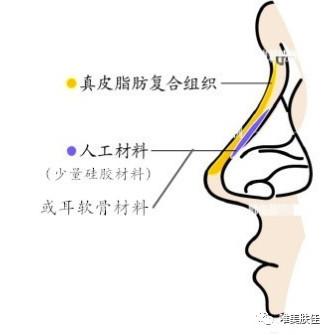 https://img.miyanlife.com/mnt/timg/210221/094Z63O3-8.jpg 隆鼻材料到底什么好?听听医生怎么说 知识库 第9张
